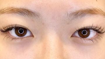 TCB東京中央美容外科 心斎橋筋院の目・二重整形の症例写真[ビフォー]