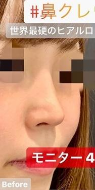 ルラ美容クリニック 高田馬場院の鼻の整形の症例写真[ビフォー]
