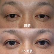 湘南美容クリニック湘南藤沢院の目・二重の整形の症例写真