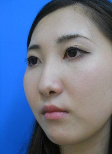 医療法人社団 愛美会の鼻の整形の症例写真[ビフォー]