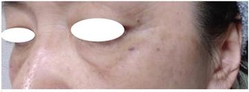 西宮SHUHEI美容クリニックのシミ治療(シミ取り)・肝斑・毛穴治療の症例写真[アフター]