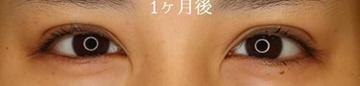 広島プルミエクリニックの目・二重整形の症例写真[アフター]