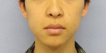 湘南美容クリニック 新潟院の顔の整形(輪郭・顎の整形)の症例写真[ビフォー]