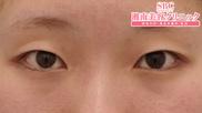 湘南美容クリニック東京蒲田院の目・二重の整形の症例写真[ビフォー]