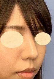 湘南美容クリニック新潟院の鼻の整形の症例写真[アフター]