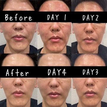 さっぽろ美容クリニック 本院のニキビ・ニキビ跡の治療の症例写真