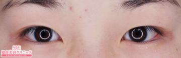 湘南美容クリニック大阪梅田院の目・二重の整形の症例写真[ビフォー]