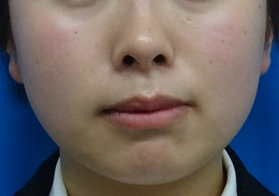 BNLSneo 10cc 頬の症例写真[ビフォー]