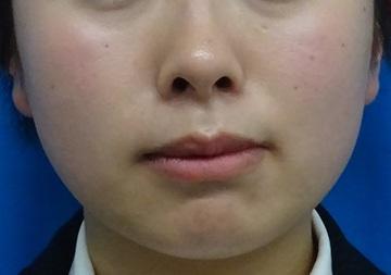 TCB東京中央美容外科の痩身、メディカルダイエットの症例写真[ビフォー]