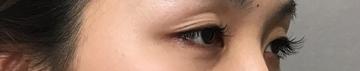 TCB東京中央美容外科 堺院の目・二重の整形の症例写真[ビフォー]