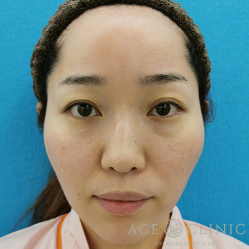 エースクリニックの顔のしわ・たるみの整形(リフトアップ手術)の症例写真[ビフォー]