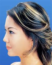 ガーデンクリニックの鼻の整形の症例写真[アフター]