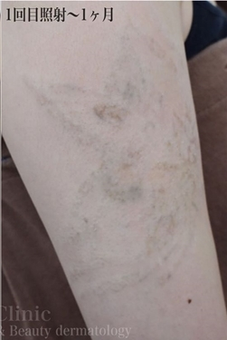 ジョウクリニックのタトゥー除去の症例写真[アフター]