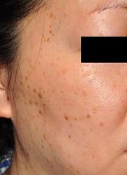 ブリスクリニック形成外科・美容外科・美容皮膚科福岡の症例写真[ビフォー]