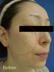 フェミークリニックのシミ治療(シミ取り)・肝斑・毛穴治療の症例写真[ビフォー]
