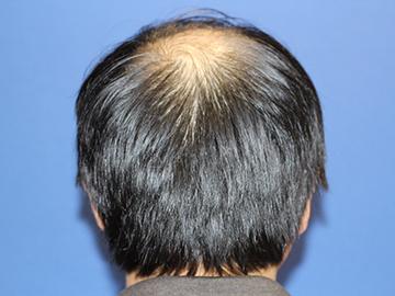 親和クリニックの植毛・自毛植毛の症例写真[ビフォー]