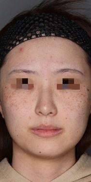 SELECT CLINIC(セレクトクリニック)のシミ取り・肝斑・毛穴治療の症例写真[ビフォー]