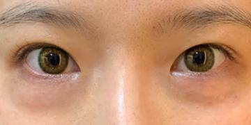 フォーシーズンズ美容皮膚科クリニックの目元整形・クマ治療の症例写真[ビフォー]