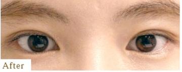 表参道スキンクリニックの目・二重の整形の症例写真[アフター]