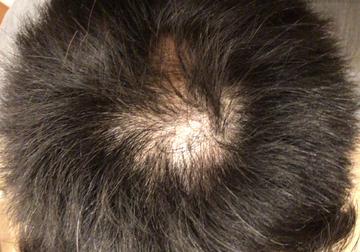 フォーシーズンズ美容皮膚科クリニックの薄毛治療の症例写真[ビフォー]