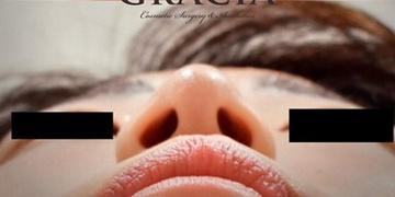 GRACIA clinic(グラシアクリニック) (旧L.O.V.E beauty clinic)の鼻の整形の症例写真[アフター]