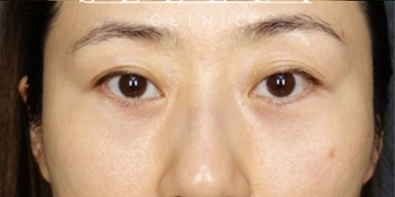 SELECT CLINIC(セレクトクリニック)の目元の整形、くま治療の症例写真[アフター]