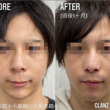 GLANZ CLINIC (グランツクリニック)の鼻の整形の症例写真