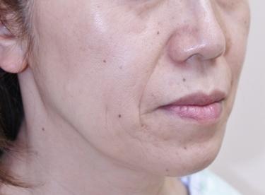 こめかみ・頬のフェイスリフトの症例写真[ビフォー]