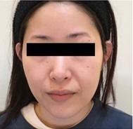 とりい皮膚科クリニックのリフトアップレーザーの症例写真[ビフォー]