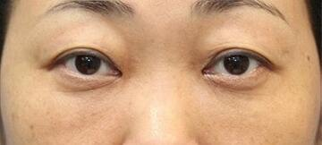 新宿ラクル美容外科クリニックの目元の整形、くま治療の症例写真[アフター]