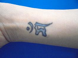 ガーデンクリニックのタトゥー除去(刺青・入れ墨を消す治療)の症例写真[ビフォー]