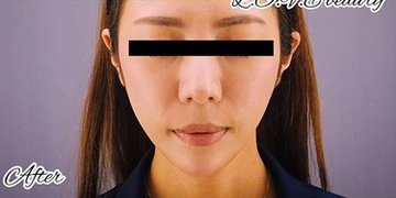 GRACIA clinic(グラシアクリニック)(旧L.O.V.E beauty clinic)の顔のしわ・たるみの整形(リフトアップ手術)の症例写真[アフター]