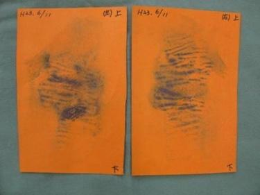 多汗症ボトックス ※1ヶ月後の症例写真[ビフォー]