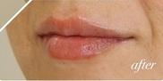 かなえデンタルクリニックの口もと、唇の整形の症例写真[アフター]