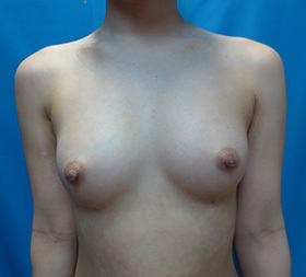 ガーデンクリニックの豊胸手術(胸の整形)の症例写真[アフター]