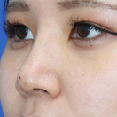 【鼻整形】鼻プロテーゼ+耳介軟骨移植+鼻尖形成[アフター]