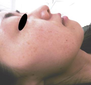 御所南はなこクリニックのシミ治療(シミ取り)・肝斑・毛穴治療の症例写真[ビフォー]