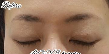L.O.V.E beauty clinic(ラブビューティークリニック)のアートメイクの症例写真[ビフォー]