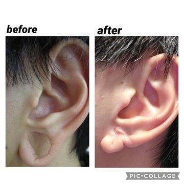 浜松中央クリニックの耳の整形の症例写真