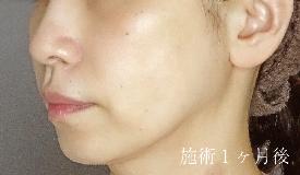 TCB東京中央美容外科 梅田大阪駅前院の症例写真[アフター]