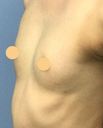 湘南美容クリニック高崎院の豊胸手術(胸の整形)の症例写真[ビフォー]