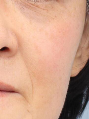 よだ形成外科クリニックのシミ治療(シミ取り)・肝斑・毛穴治療の症例写真[アフター]