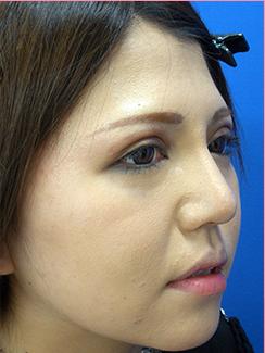 ■隆鼻術+鼻尖縮小術の症例写真[アフター]