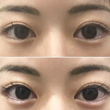 しのぶ皮膚科の目元の整形、くま治療の症例写真