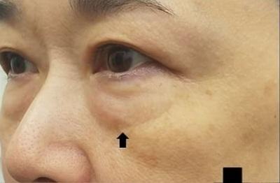 アイバックリムーブ+コンデンスリッチ/術後3ヶ月の症例写真[ビフォー]