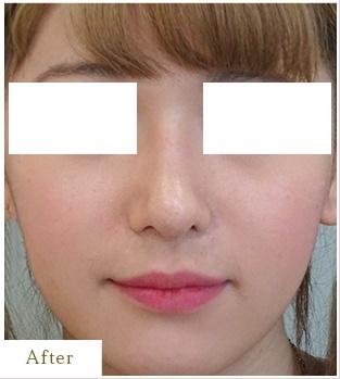 表参道スキンクリニックの鼻の整形の症例写真[アフター]