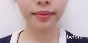 トキコクリニック 京都四条院の顔の整形(輪郭・顎の整形)の症例写真[ビフォー]