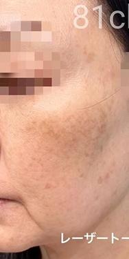 81clinicのシミ治療(シミ取り)・肝斑・毛穴治療の症例写真[ビフォー]