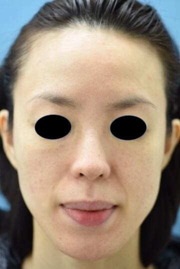 みずほクリニックのその他の美容皮膚科治療の症例写真[アフター]