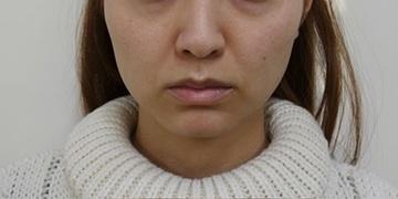 SELECT CLINIC(セレクトクリニック)の顔のしわ・たるみの整形(リフトアップ手術)の症例写真[ビフォー]